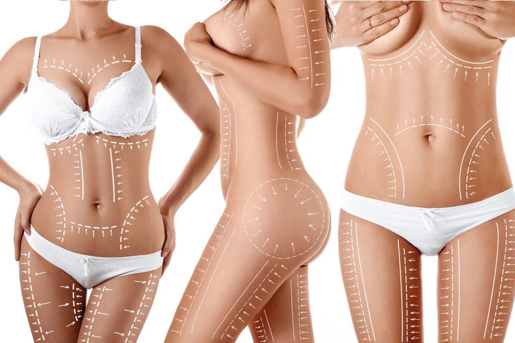lipoaspiratia sau liposuctia zonelor